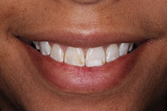 Smile Gallery - Eastgate Smiles